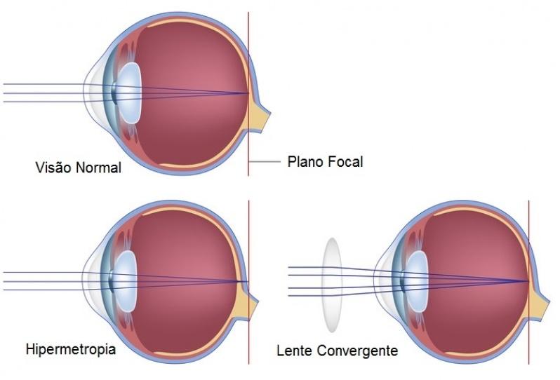 Cirurgia de Iridectomia Jardim Ângela - Cirurgia Ocular em Sp