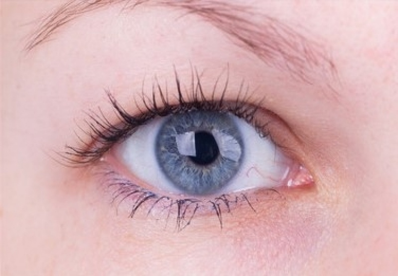 Cirurgia de Pterígio Quanto Custa Guaianases - Cirurgia Ocular em Sp