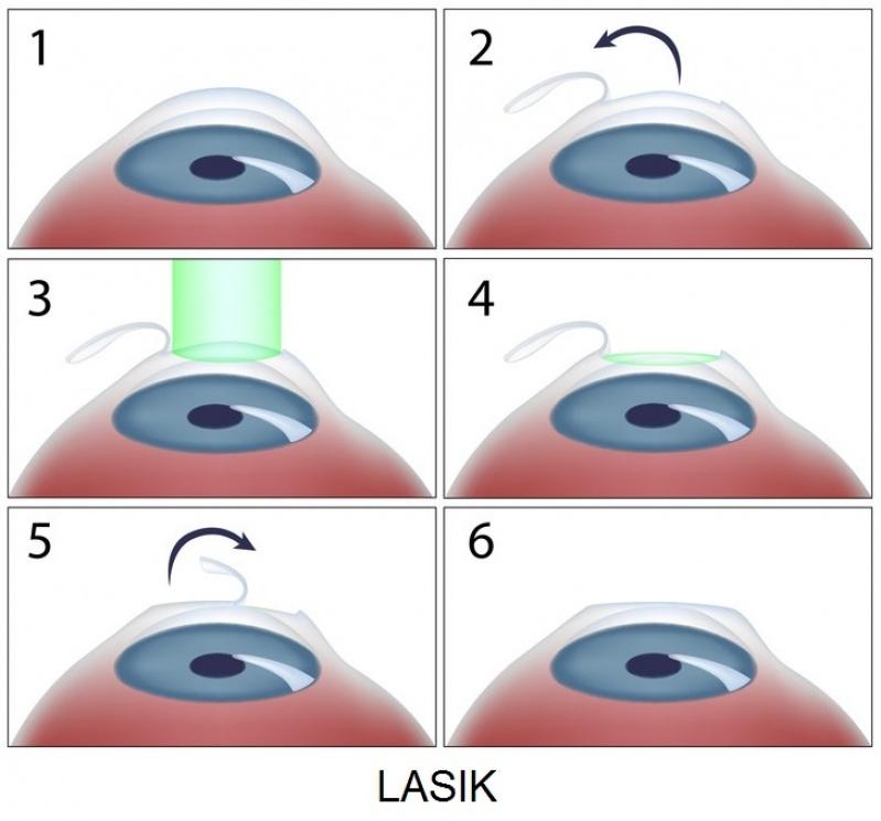 Oftalmologista para Cirurgia de Glaucoma Interlagos - Oftalmologista para Cirurgia de Pálpebras