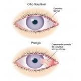 cirurgia ocular de pterígio Engenheiro Goulart