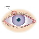 cirurgia refrativa para astigmatismo Jardim América