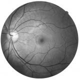 exame de campimetria ocular Anália Franco