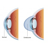 médico particular oftalmologia no Cambuci