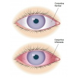 médicos especialistas em oftalmologia em Higienópolis