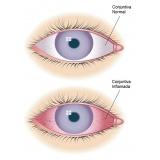 médico especialista em oftalmologia
