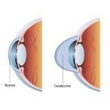 oftalmologista para cirurgia de anel de ferrara
