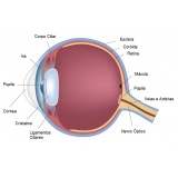 oftalmologistas para cirurgia de anel de ferrara Campo Belo