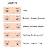 tratamento de doenças oculares quanto custa São Domingos
