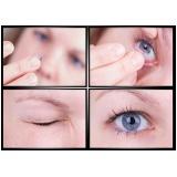 tratamento oftalmológico preço na Santa Efigênia
