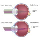 tratamento oftalmológico Bairro do Limão