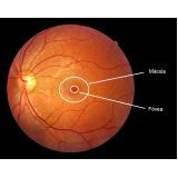 tratamento para miopia